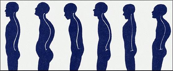 postura 2